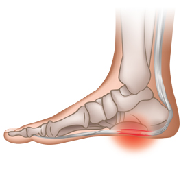 db3a0aa8c5 Heel Pain – Causes and Treatments