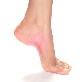Plantar Fasciitis: Is Your Diet The Key?