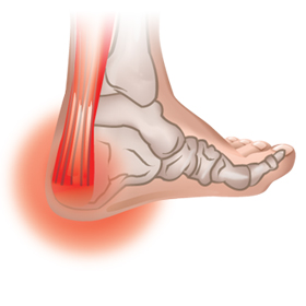 Foot Problems Causes Diagnosis Prevention And Treatment