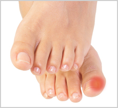 Ingrown Toenails And How To Prevent Them