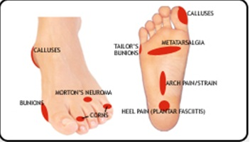 Orthotics Treatment To Help Eliminate Your Foot Pain