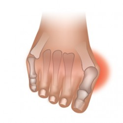 Guide to Bunions