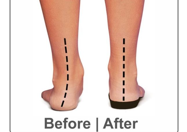 2f33a45b05dd There are several things that can be done to care for flat feet. The most  important step in coping with flat feet is a simple modification of the  shoes.