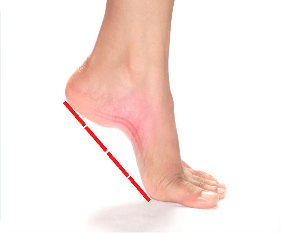 how do i know if i have flat feet