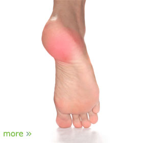 Foot bottom pain diagnosis