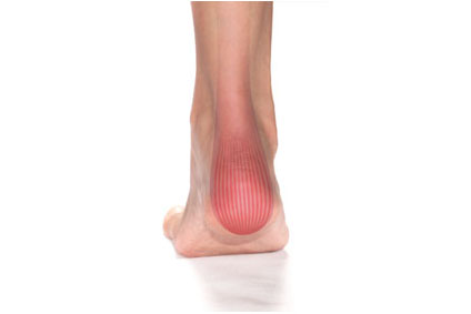 How Do You Know If Your Achilles Is Torn?