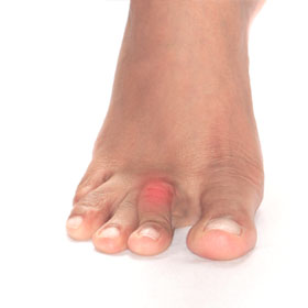 Hammertoe Foot Solutions