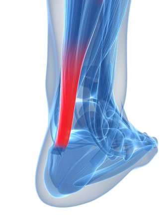 What You Should Know About Achilles Tendonitis