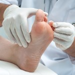 29766672 - doctor dermatologist examines the foot on the presence of athletes foot